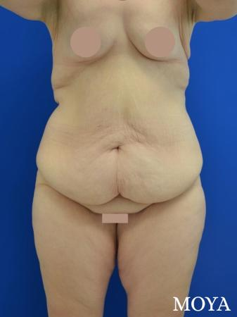 Corset Body Lift® (standard): BMI 32 - Before Image