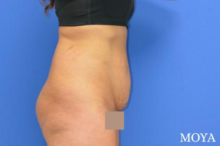 Tummy Tuck (mini):  Patient 4 - Before Image
