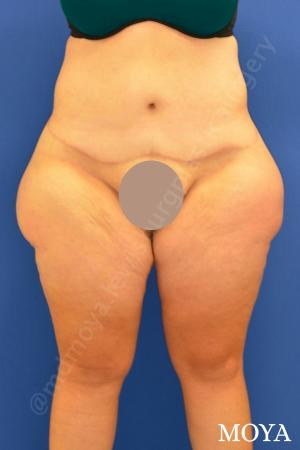 Outer Thigh Tuck - Before Image