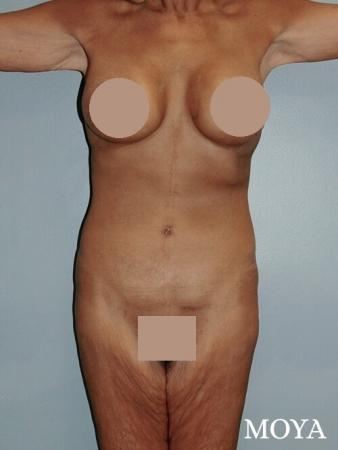 Corset Body Lift® (standard): BMI 20 - After Image