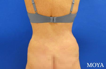 Back Lift: Patient 2 - After Image