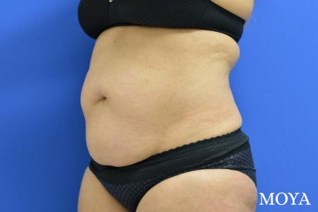 Liposuction - Abdomen - Before Image