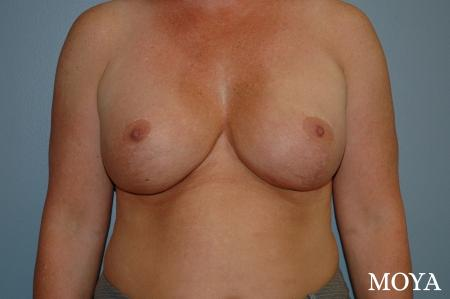 Breast Augmentation With Lift: Patient 9 - After Image