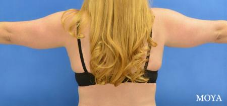 Liposuction (Arms):  Patient 1 - Before Image