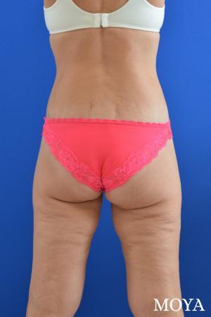 Butt Lift: Patient 2 - After Image
