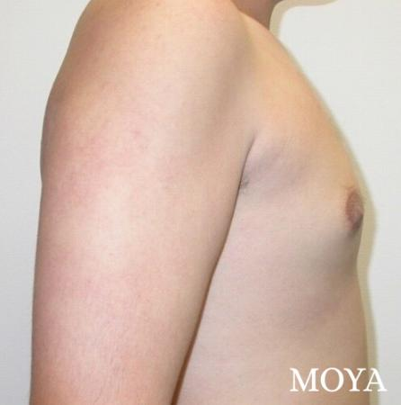 Male Breast Reduction: Patient 1 - After Image