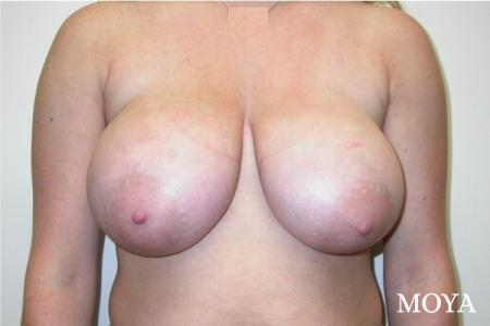 Breast Reduction: Patient 2 - Before Image