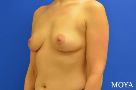 Breast Lift (anchor) - After Image