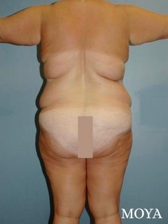 Back Lift: Patient 1 - Before Image