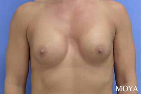 Breast Implant Exchange: Patient 4 - Before Image