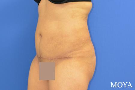 Tummy Tuck (mini):  Patient 1 - After Image