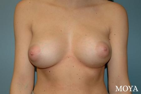 Breast Asymmetry: Patient 2 - After Image