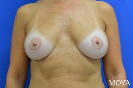 Breast Implant Exchange: Patient 5 - After Image