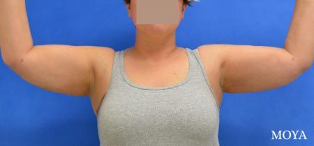 Liposuction (Arms):  Patient 2 - After Image