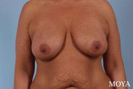 Breast Augmentation With Lift: Patient 8 - Before Image