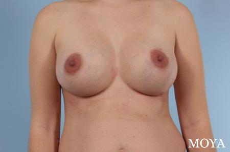 Breast Augmentation: Patient 8 - After Image