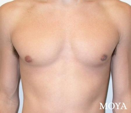 Male Breast Reduction: Patient 3 - After Image 2