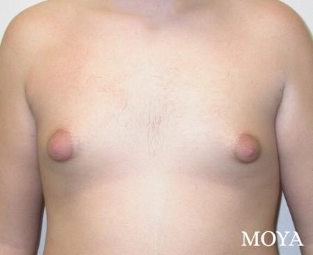 Male Breast Reduction: Patient 1 - Before and After Image 2