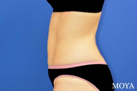Tummy Tuck (limited) - After Image