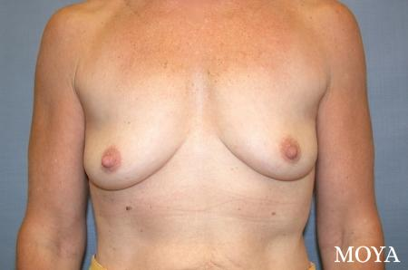 Breast Augmentation: Patient 4 - Before Image