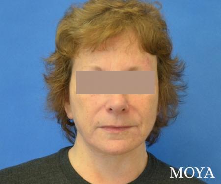 Neck Lift: Patient 6 - After Image