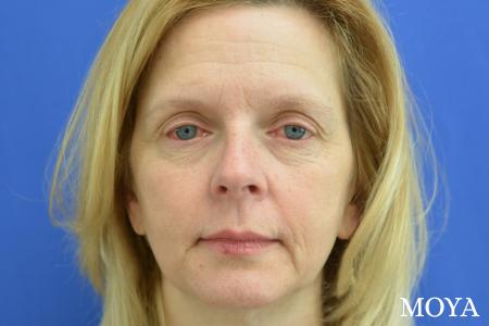 Eyelid Lift: Patient 2 - Before Image