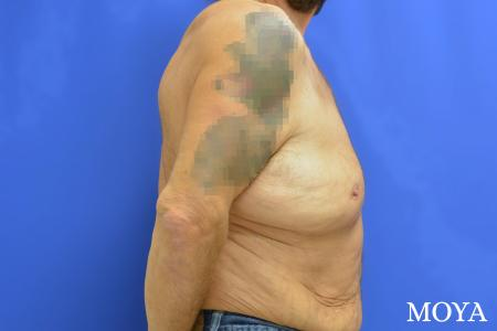Upper Body Lift: Patient 4 - Before Image