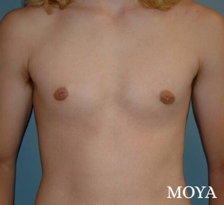 Male Breast Reduction: Patient 2 - After Image 2
