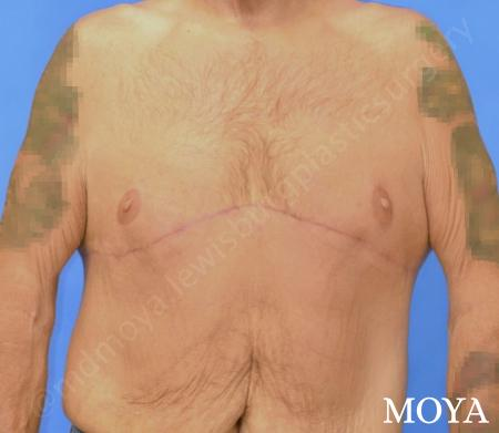 Upper Body Lift: Patient 2 - After Image