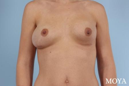 Breast Implant Exchange: Patient 1 - Before Image