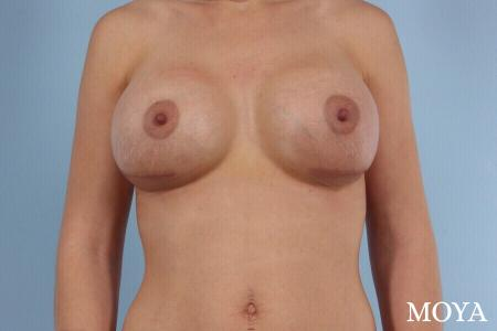 Breast Implant Exchange: Patient 1 - After Image
