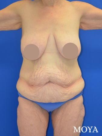 Corset Body Lift® (standard): BMI 31 - Before Image