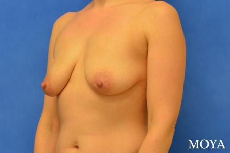 Breast Lift (anchor) - Before Image