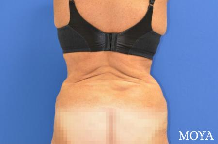 Back Lift: Patient 2 - Before Image