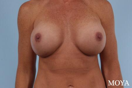 Breast Implant Exchange: Patient 3 - After Image