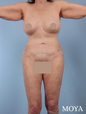 Corset Body Lift® (standard): BMI 24 - After Image