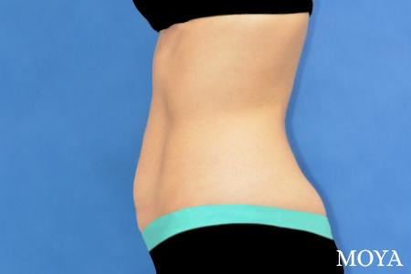 Tummy Tuck (limited) - Before Image