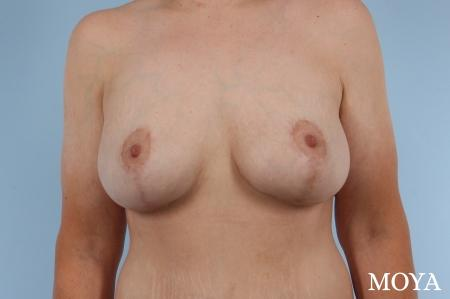 Breast Augmentation With Lift: Patient 6 - After Image