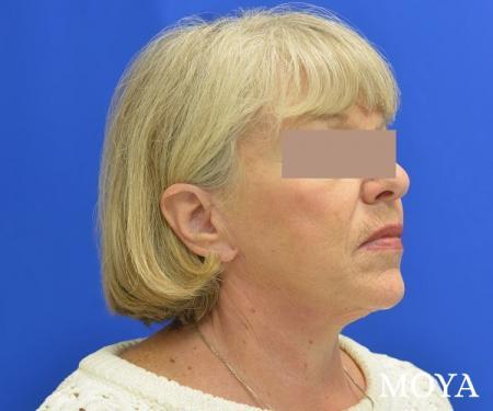 Neck Lift: Patient 5 - After Image