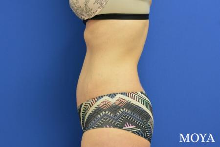 Tummy Tuck (standard) - After Image