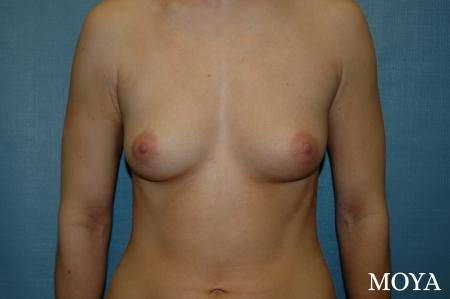Breast Augmentation: Patient 3 - Before Image