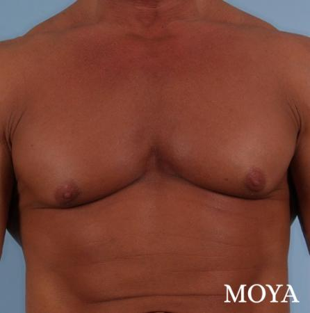 Male Breast Reduction: Patient 5 - Before and After Image 2