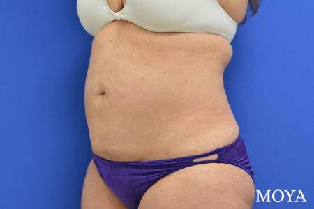 Liposuction - Abdomen - After Image