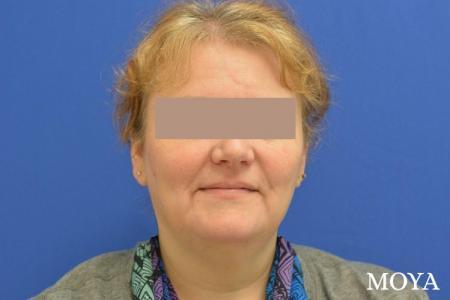Facial Liposuction: Patient 1 - Before Image