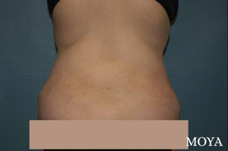 Liposuction - Back - After Image