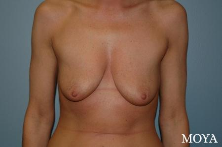 Breast Augmentation With Lift: Patient 2 - Before Image