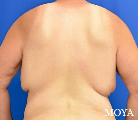 Upper Body Lift:  Patient 1 - Before and After Image 3