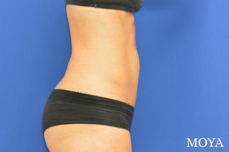 Tummy Tuck (mini):  Patient 2 - After Image