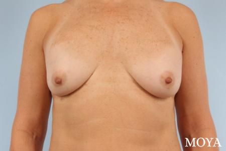 Breast Implant Exchange: Patient 5 - Before Image