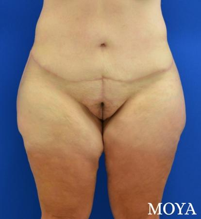 Mons Pubis Reduction: Patient 1 - After Image